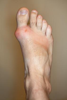 Foods to Eat and Avoid for Gout
