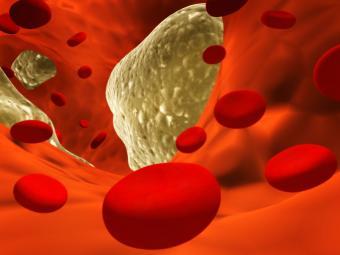 https://cf.ltkcdn.net/diet/images/slide/129996-800x600r1-cholesterol.jpg