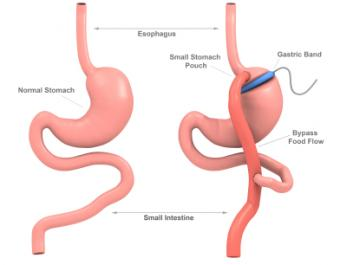 Gastric Bypass Versus Lap Band