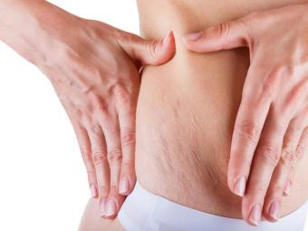 Dealing With Stretch Marks After Weight Loss