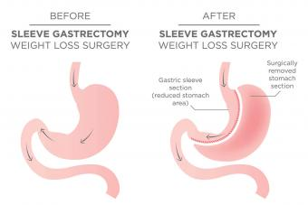 Before and after sleeve gastrectomy