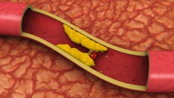 https://cf.ltkcdn.net/diet/images/slide/86359-462x260-arteryclog.jpg