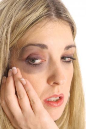 bruised woman