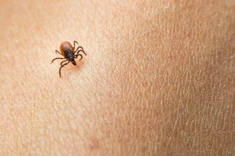 tick on human skin