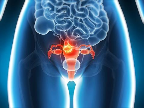 Ilustración del útero