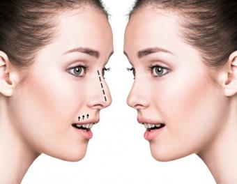 History of Plastic and Cosmetic Surgery