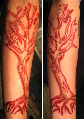 Scarification piece done using a scalpel and an electric cauterizer