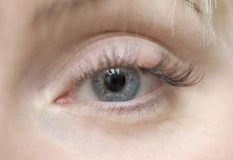 Light-colored eye