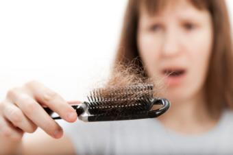Celiac and Hair Loss