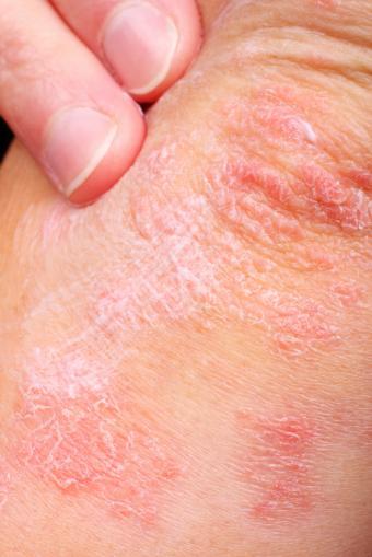 https://cf.ltkcdn.net/gluten/images/slide/167663-566x848-elbow-rash.jpg