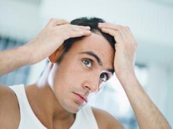 man-checking-hairline.jpg