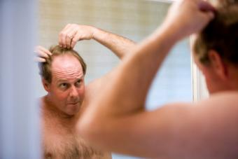 Five Things Men Do When They Start Losing Their Hair