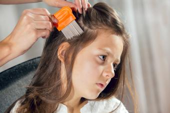 Everything You Need to Know About Super Lice