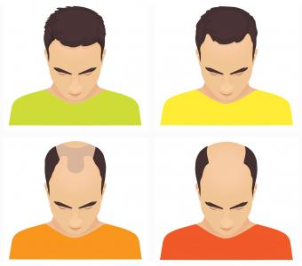 Hair loss stages in men