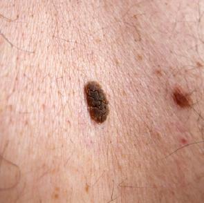 Warts and Moles