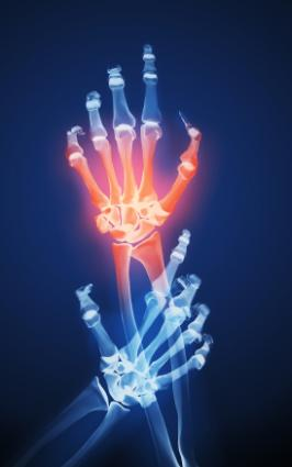Inflamed joints in hand.