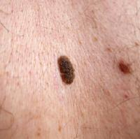 Warts and Moles