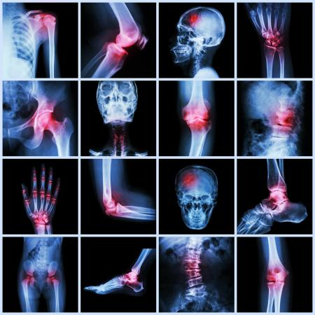 Human joint arthritis and stroke