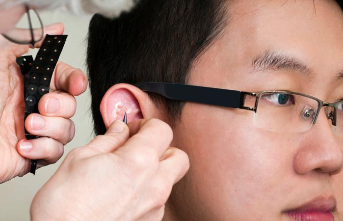 Acupuncture Magnets on Ear
