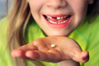 Girl holding baby tooth she lost