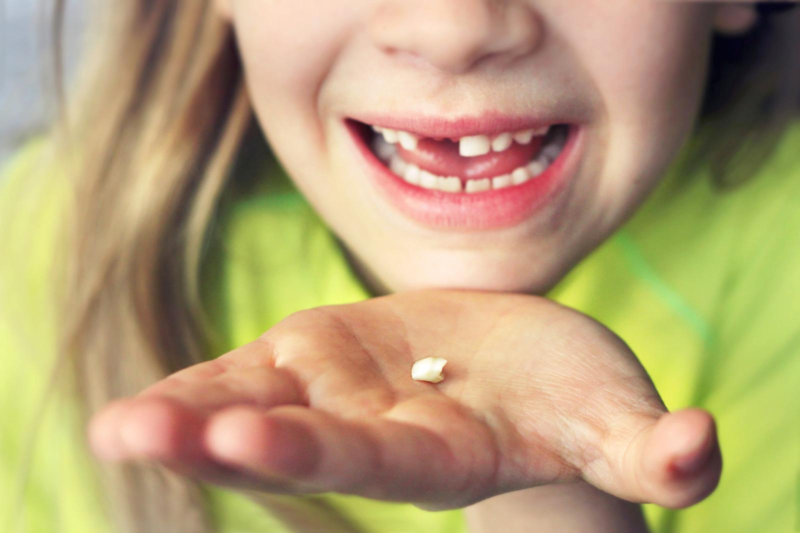 Baby tooth held in the hand of a girl. In the background the smiling girl