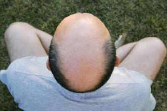 Permanent Makeup for Bald Head