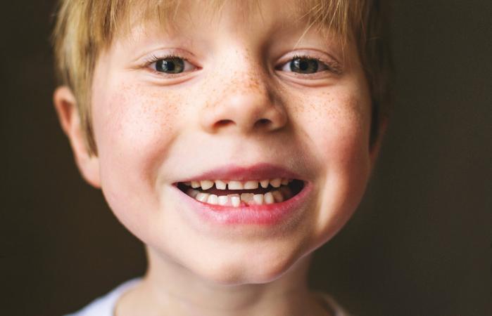 retrato de un niño con diente faltante