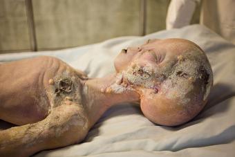 https://cf.ltkcdn.net/paranormal/images/slide/215214-704x469-Alien-Autopsy.jpg