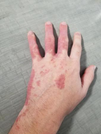 Hand with port-wine stain