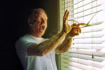 A man with visible fangs cries out in pain as his skin cracks and burns in the sunlight