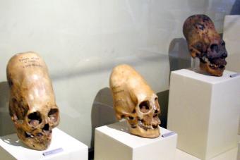 https://cf.ltkcdn.net/paranormal/images/slide/277280-850x567-paracas-skulls.jpg