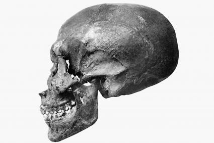 Akhenaten skull profile