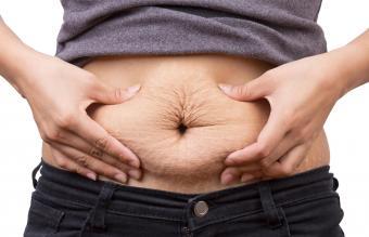 Woman pinching post-pregnancy skin