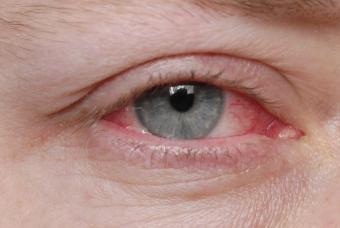 Pink Eye During Pregnancy