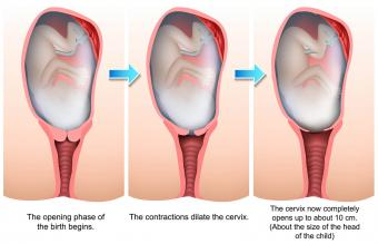 Stages of birth illustration