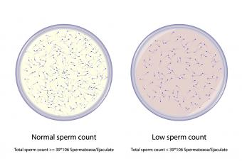 Comparison between normal and low sperm count