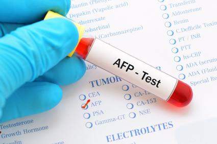 Blood sample with requisition form for AFP test