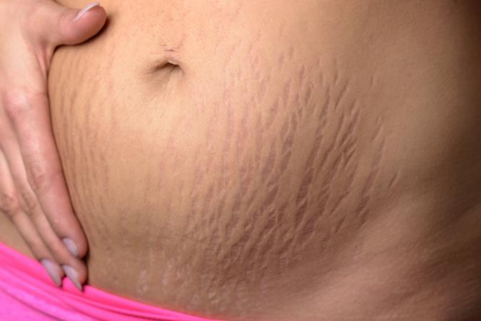 belly with stretch marks
