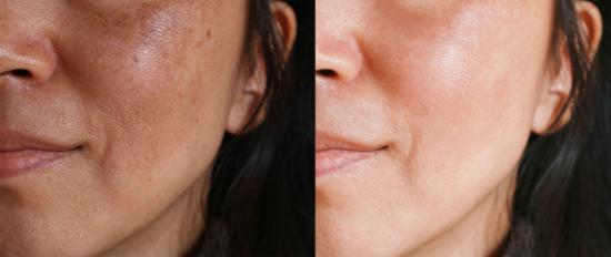 melasma on woman's face