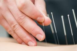Close-up photo of acupuncture