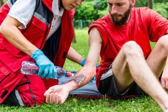 Treating burn on arm