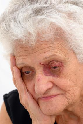 Senior woman with a black eye