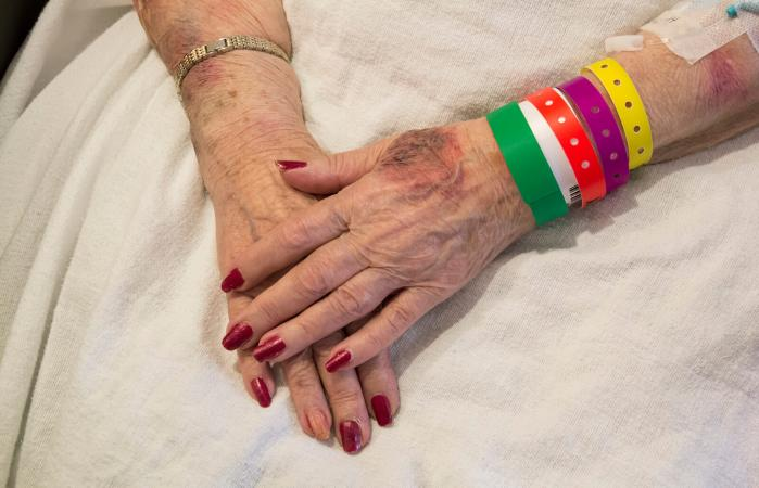 Bruised Hands of Elderly Woman in Emergency Room
