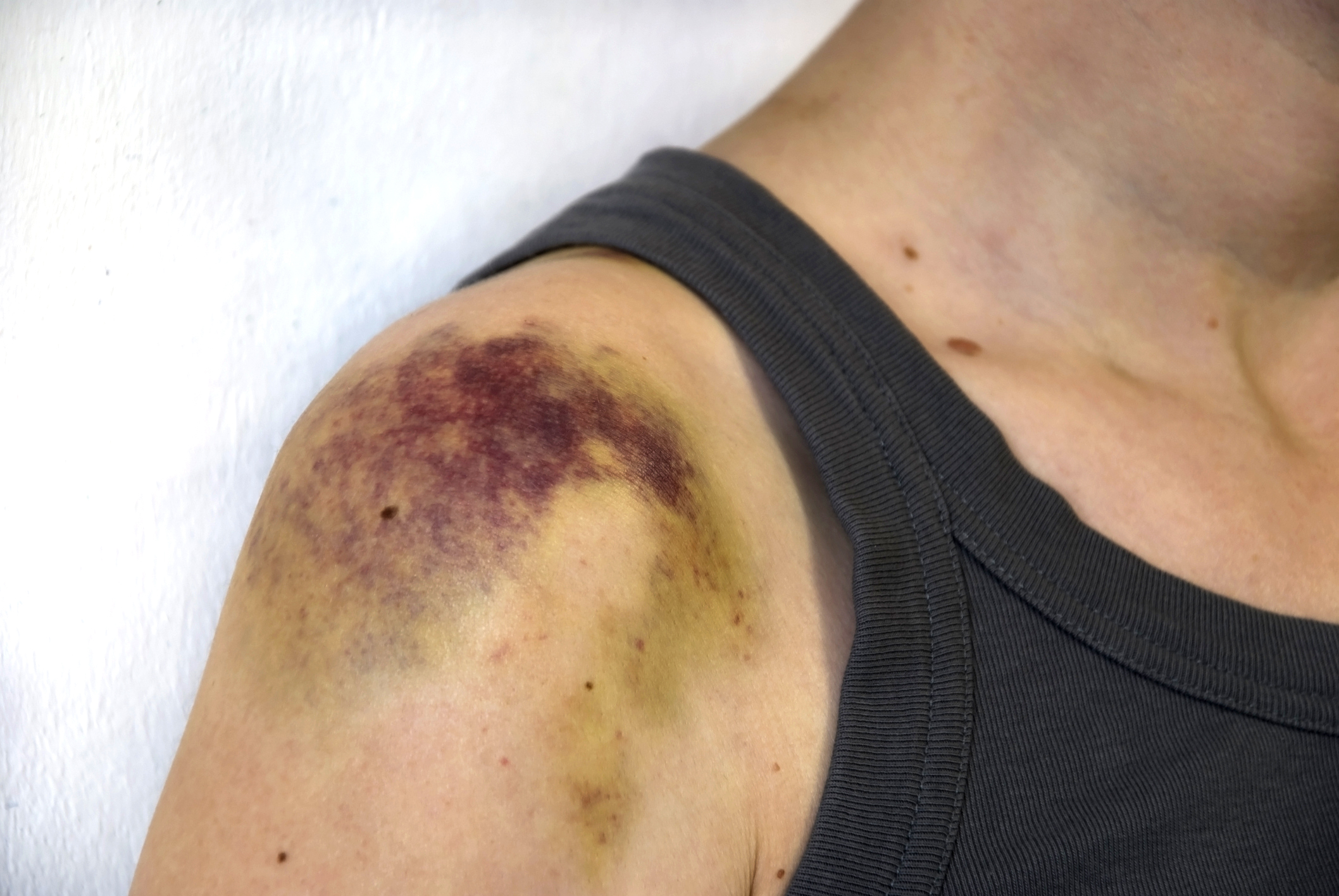 A bruise is ... Treatment and symptoms of injury