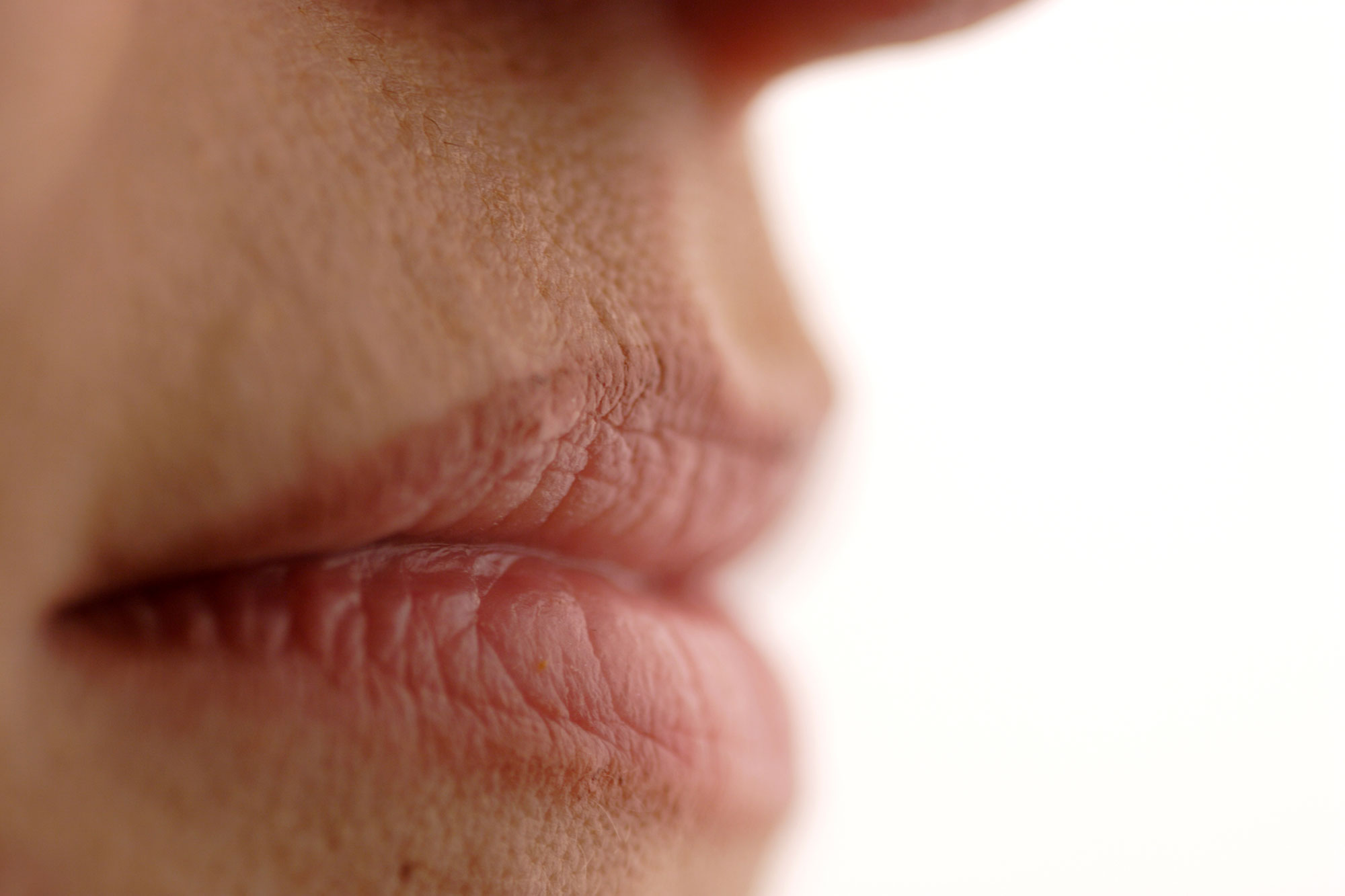 Cracks in the corners of the lips: treatment and prevention 63