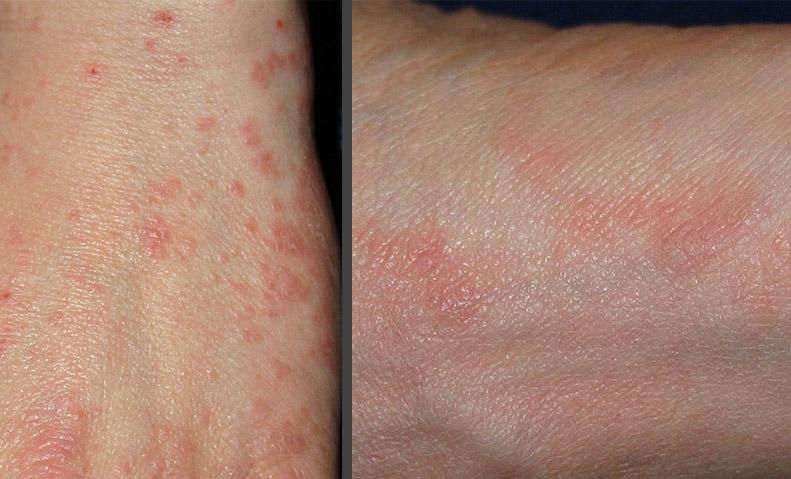 rings dyshidrotic pictures treatment symptoms causes contagious eczema