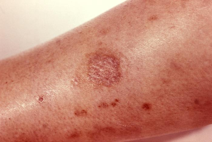 https://cf.ltkcdn.net/skincare/images/slide/168130-700x471-brown-recluse-bite.jpg