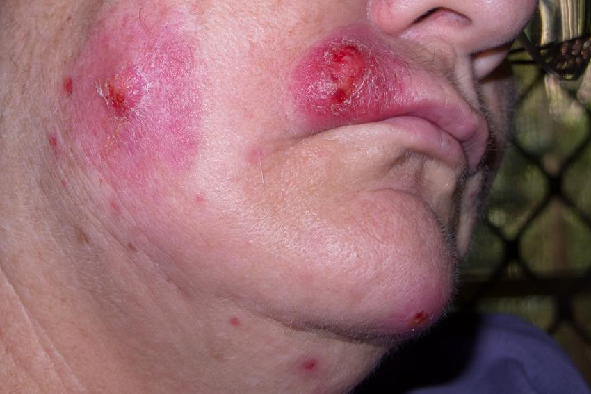 https://cf.ltkcdn.net/skincare/images/slide/214748-850x567-Staph-infection-on-face.jpg