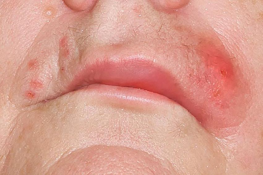 https://cf.ltkcdn.net/skincare/images/slide/214750-850x567-Staph-infection-on-mouth.jpg