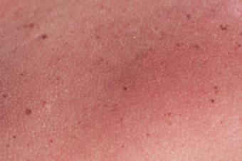 https://cf.ltkcdn.net/skincare/images/slide/130735-425x282-Heat-rash-and-sunburn.jpg